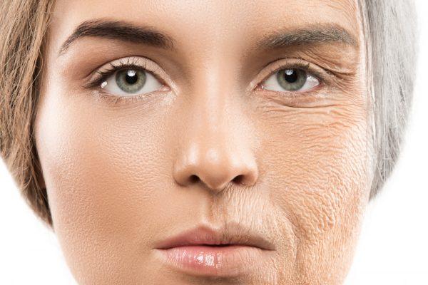 collagen3