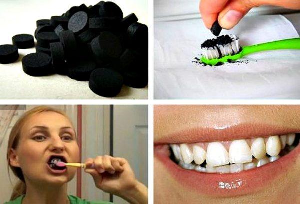 kak otbelity zubi3